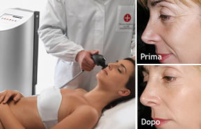 dermal shape viso